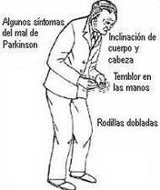 sintomas-del-parkinson_thumb