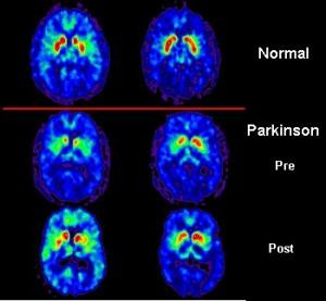 tomografía parkinson