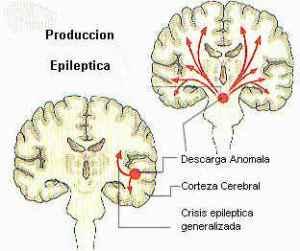 focoepilepsia