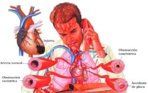 infarto_miocardio