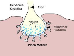 placamotora1