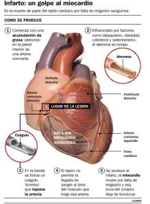 Resumen infarto