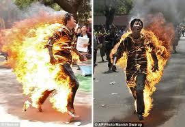 quemadura por fuego