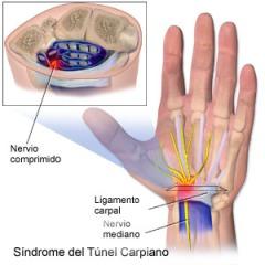 tunelcarpiano2