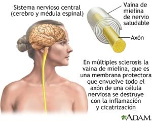 esclerosismultiple