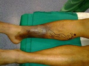 patologia-varicosa-larga-evolucion