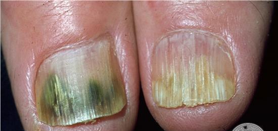 Resultado de imagen de Las infecciones por hongos