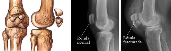 fractura_rotula_02