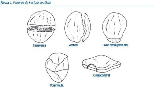 rotula1