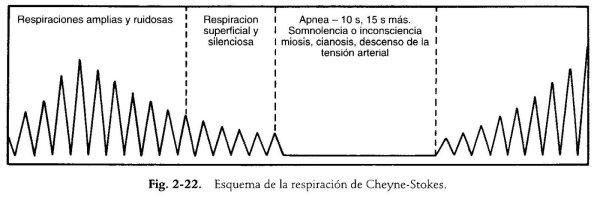 chaynestokes
