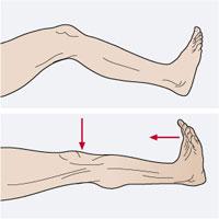 http://sportpadel.blogspot.com.es/2008/05/el-calambre-muscular.html