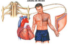 angina pecho
